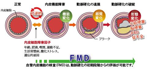 fmd02.jpg